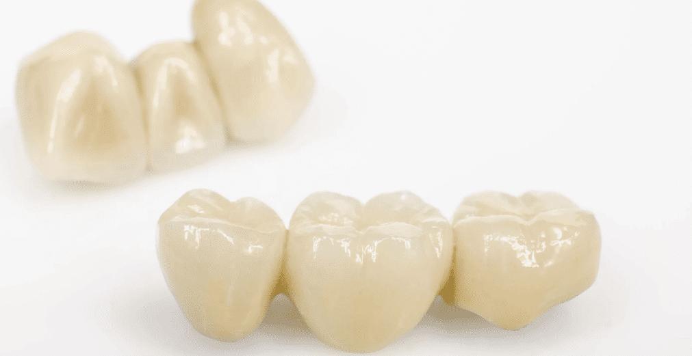 Изображение зубных коронок