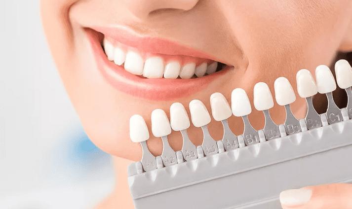 Эстетическая стоматология в Санкт-Петербурге