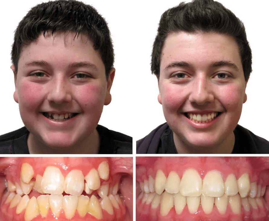 Фото до и после исправления прикуса