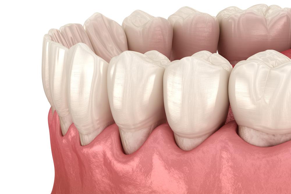 Рецессия десны стоматология Колибри